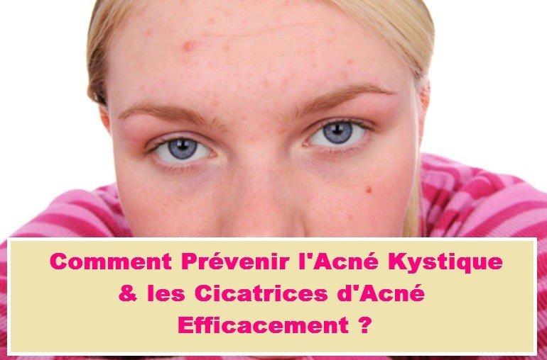 Photo de Cicatrice Acné : Comment la prévenir efficacement ?