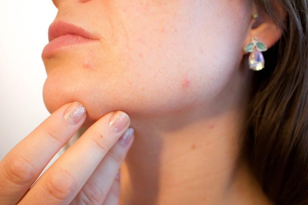 Soufre acné