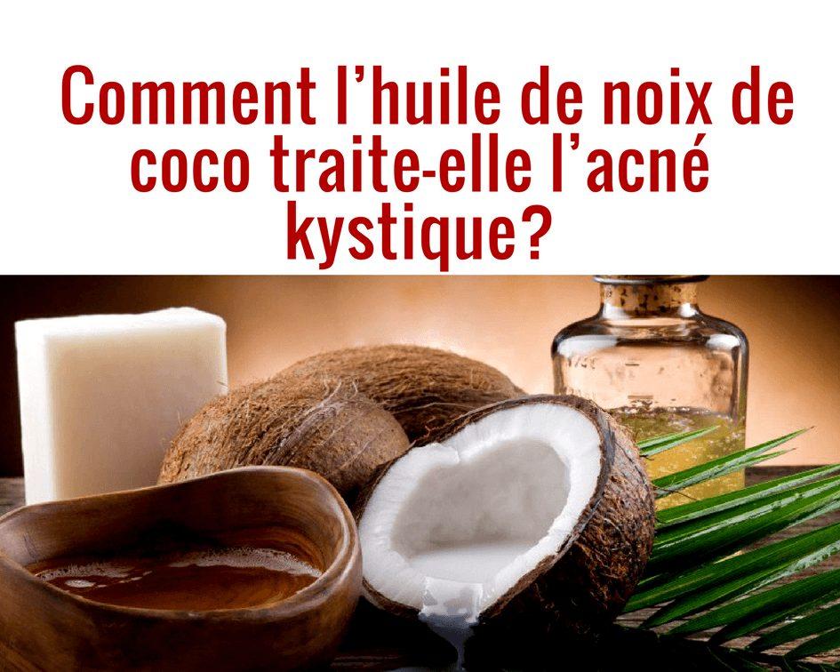 Photo of Huile de coco acné : Est-Elle efficace contre l'acné ?