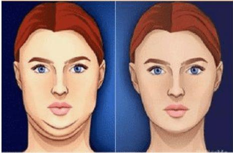 Comment perdre son double menton : Double mentonexercice