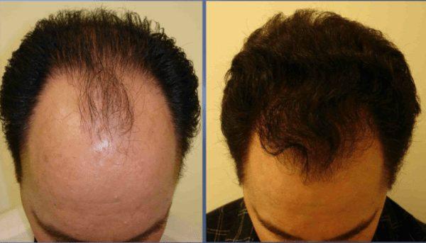 Photo de Masque cheveux maison pour faire pousser les cheveux en 5 jours !