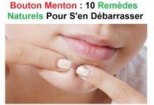 Photo de Bouton menton : 10 remèdes naturels pour s'en débarrasser radicalement