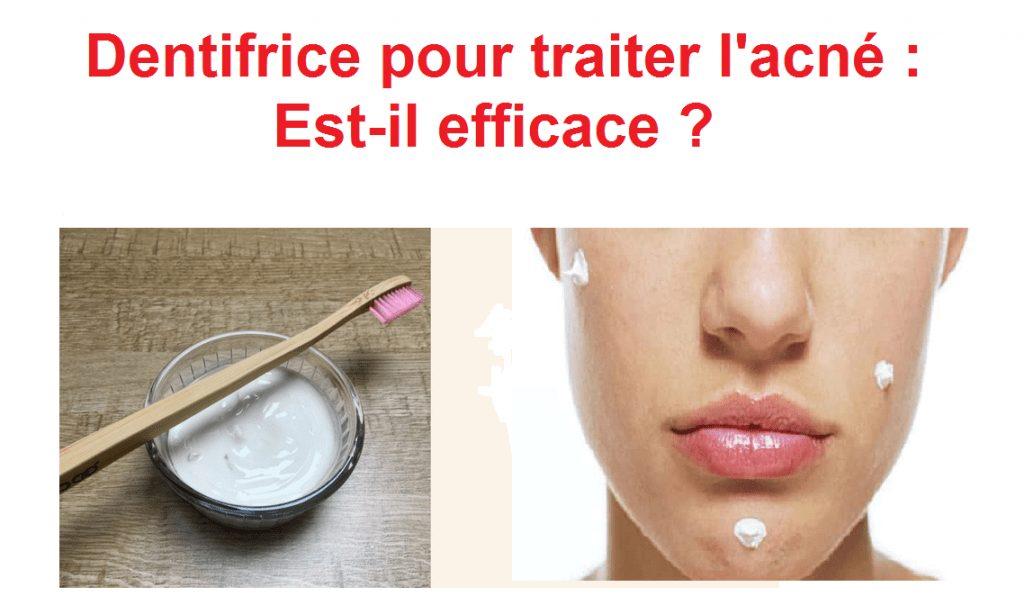 Photo de Dentifrice acné : Comment utiliser le dentifrice pour soigner l'acné ?