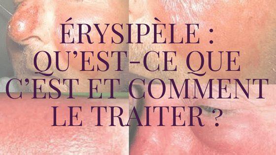 Photo of Érysipèle: Traitements Naturels Efficaces !