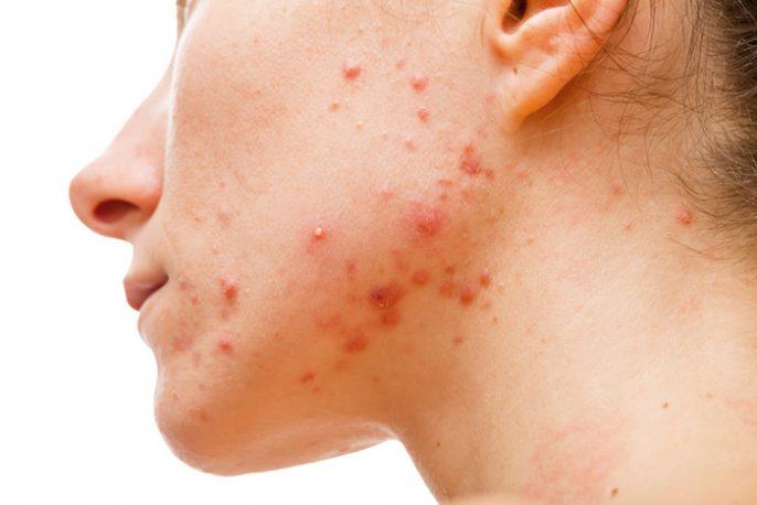 syndrome des ovaires polykystiques et acné