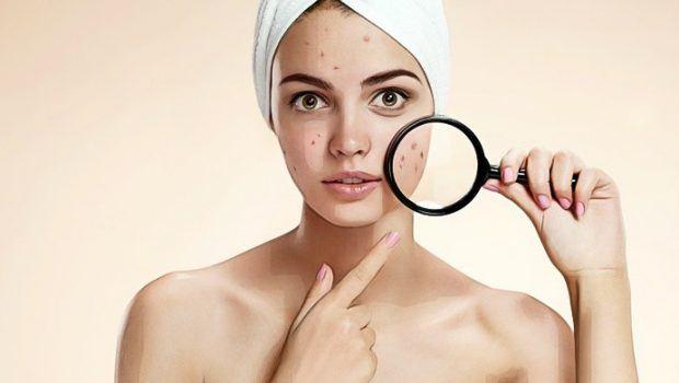 les bienfaits du vinaigre de cidre acné