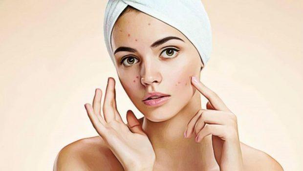 Qu'est-ce que l'acné ?