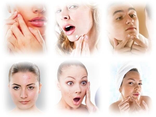 Traitement de bouton acné kystique