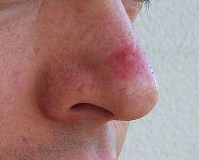 Acné sur le nez: Causes