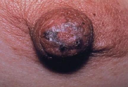 maladie de Paget du mamelon
