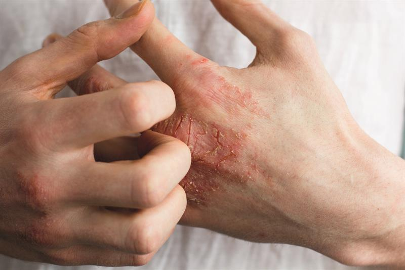 eczéma allergique de contact
