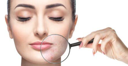 acné inflammatoire ail