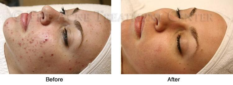 acné inflammatoire traitement