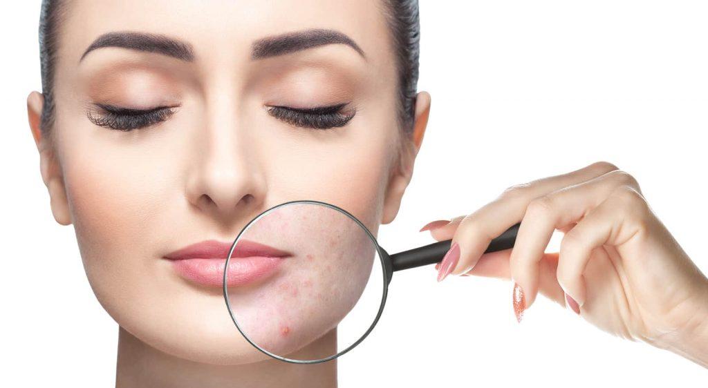 peroxyde de benzoyle acné