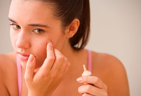 acide azélaïque acné
