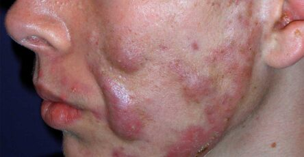 acné conglobata