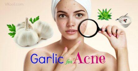 ail acné