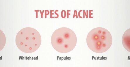 différents types d'acné