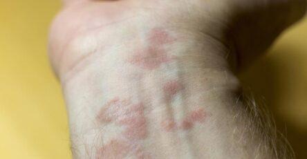 eczéma allergique de contact